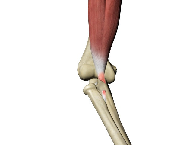 Distal Biceps Tear