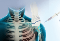 Ultrasound Guided Shoulder Injections
